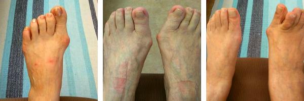 患者様の外反母趾