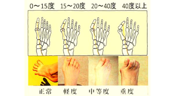 外反母趾での痛みの進行