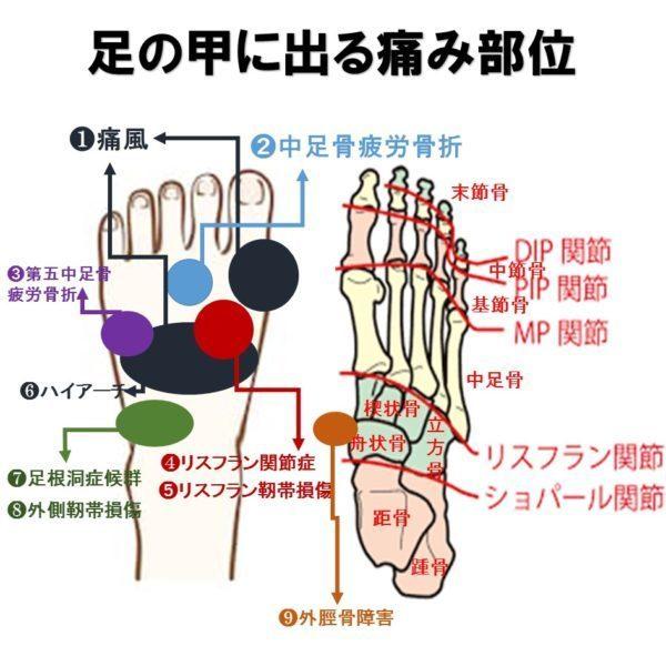 川崎市中原区武蔵小杉の足の治療家バイタルあきやまの足の甲の痛みマップ