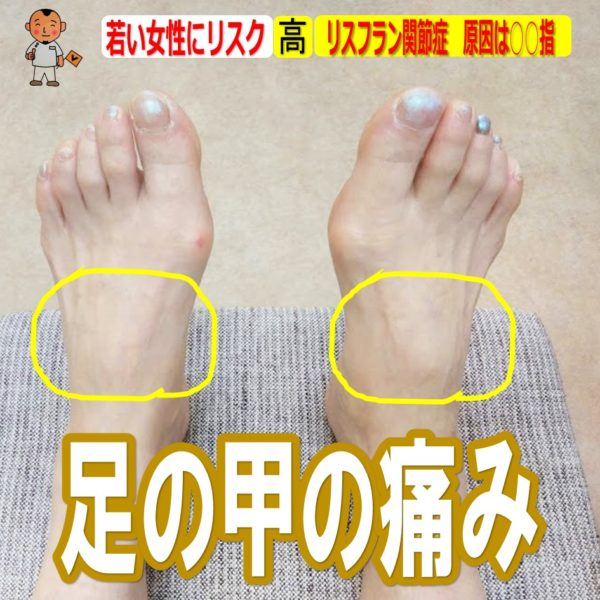 足 の 甲 痛み