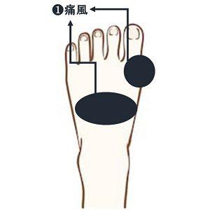 外反母趾の痛みと痛風の痛みを区別