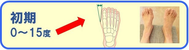 外反母趾の初期の痛みと症状