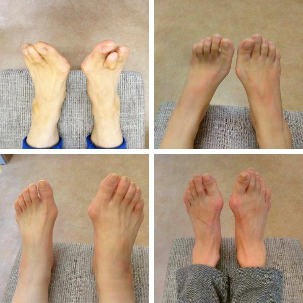 外反母趾の例