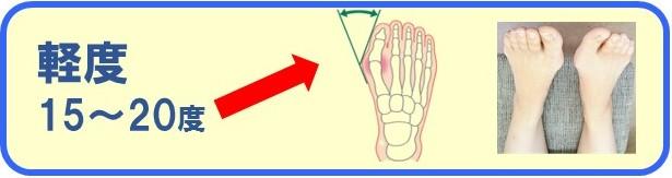外反母趾の軽度の痛みと症状