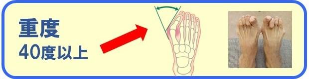 外反母趾の重度の痛みと症状