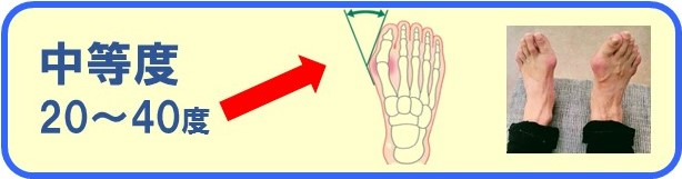外反母趾の中等度の痛みと症状