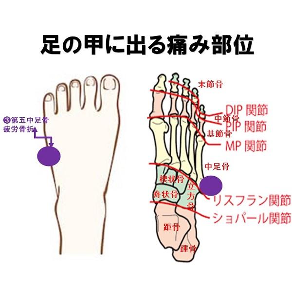疲労 骨折 足首 疲労骨折の原因は?ランナーがなってしまった場合の治し方と経験談