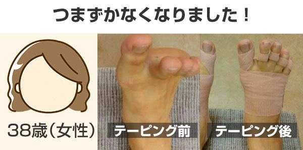 小指が痛くならなくなった!つまずかなくなった!