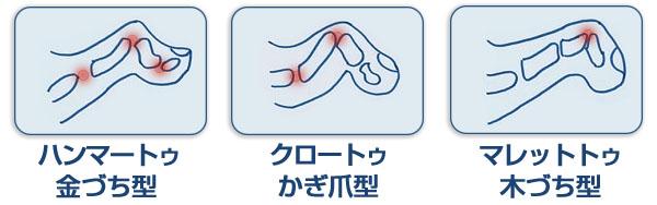 外反母趾の変形例